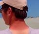 Spálená kůže od sluníčka? Jak zmírnit následky přílišného opalování