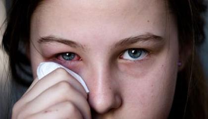 Při alergii na plísně často trpí oči a dýchací cesty