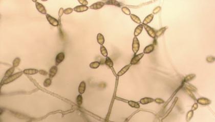 Spory jsou mikroskopické rozmnožovací částice (foto: Wikimedia)