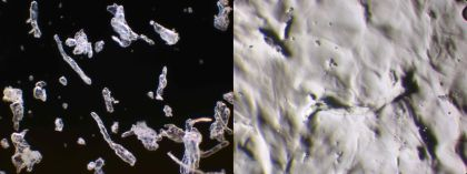 Vlevo Nasaleze prášek v suchém stavu (100 x zvětšeno), vpravo Nasaleze ochranná vrstva na nosní sliznici (100 x zvětšeno)