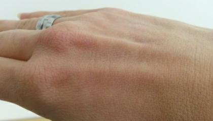 Hřbet ruky před natřením mastí Epaderm (pro zvětšení klikněte na obrázek)