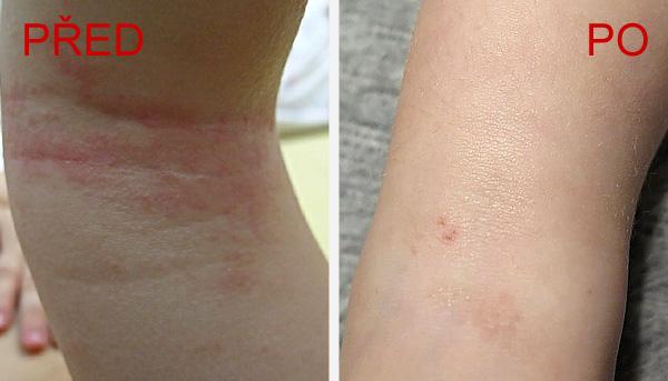 Rodiče dvouletého Káji zaznamenali zmírnění vyrážky na zadní straně nohou, v obličeji pouze mírné