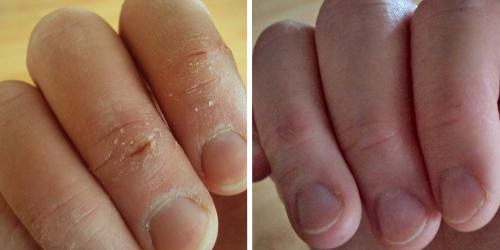 Hluboké praskliny v pokožce prstů (vlevo) se u čtenářky s přezdívkou Mika hezky zacelily