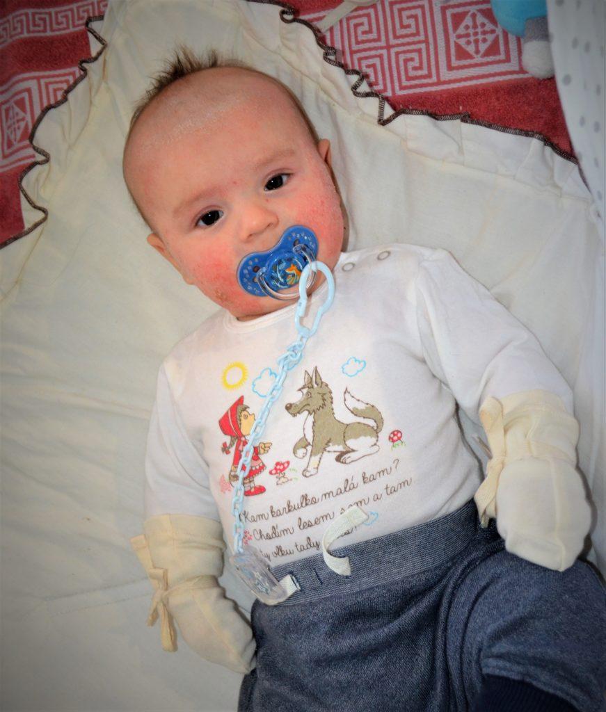Testování DermaProtec, oděvů pro děti s ekzémem